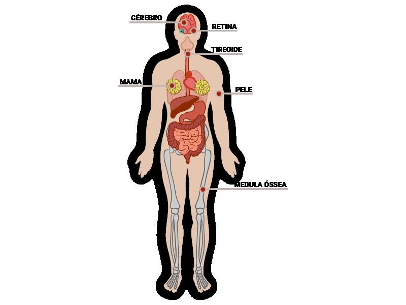 Infográfico dos órgãos mais sensíveis à radiação